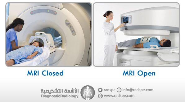 الفرق بين الرنين المفتوح والرنين المغلق MRI Open Vs MRI Closed – الأشعة  التشخيصية